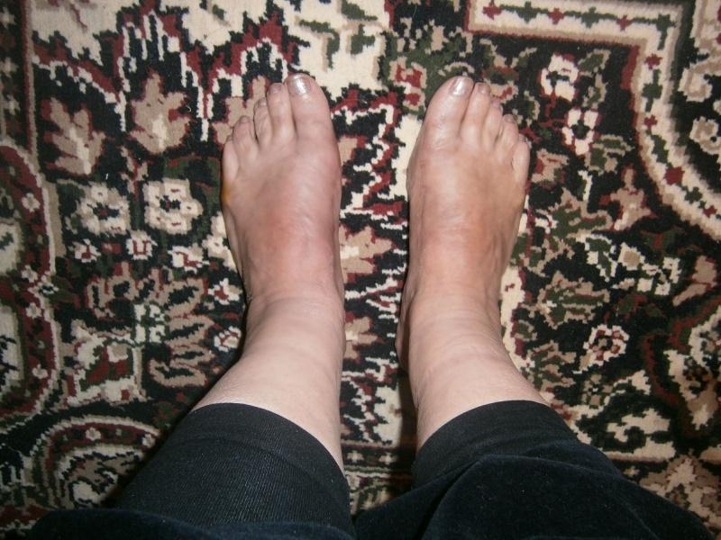 Как избавиться от косточки на ноге Советы Елены Малышевой