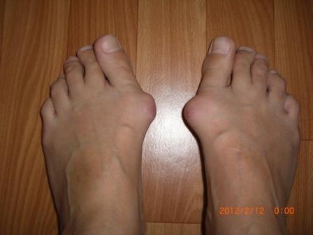 Почему на большом пальце ноги растет шишка