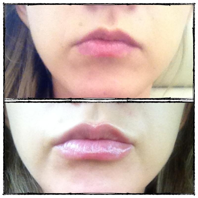 Увеличение губ regenyal