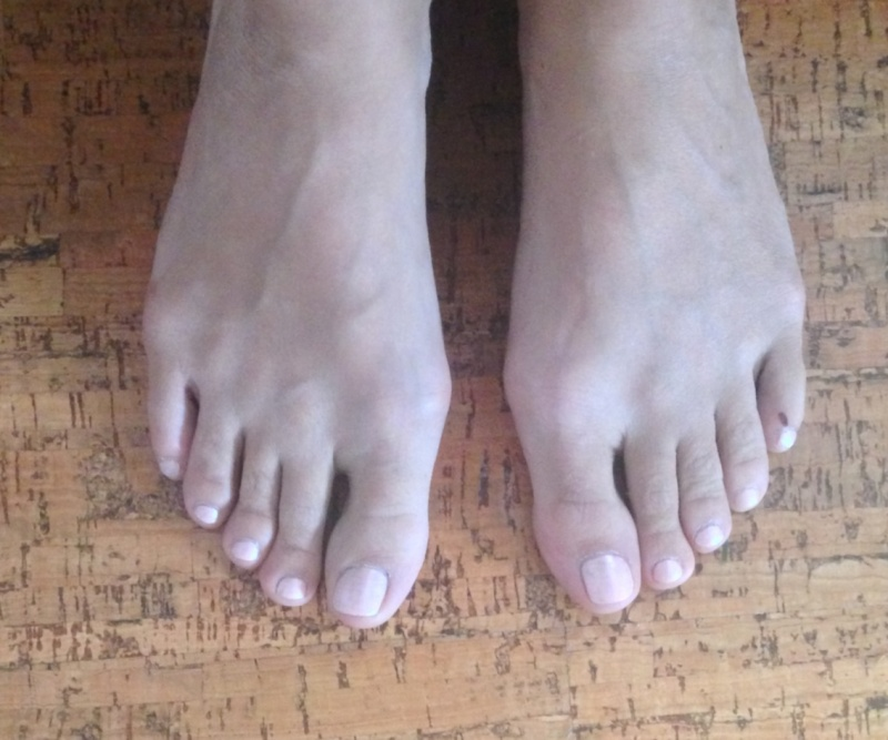 Болят большие косточки на ногах