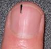 Черный ноготь отвалился