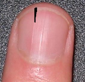 Почему на ногах ногти трескаются