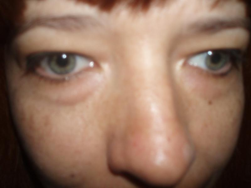Что такое лазерная хирургия глаза